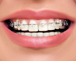 clear braces bridgewater nj