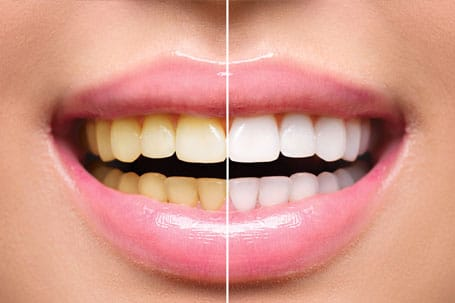 Before and after shot of the difference professional teeth whitening by this Martinsville Neew Jersey cosmetic dentist